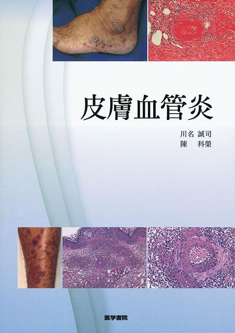 皮膚血管炎
