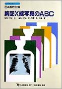 胸部X線写真のABC