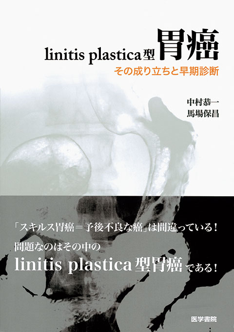 linitis plastica型胃癌