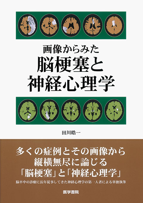 画像からみた 脳梗塞と神経心理学