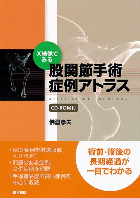 股関節手術症例アトラス [CD-ROM付]