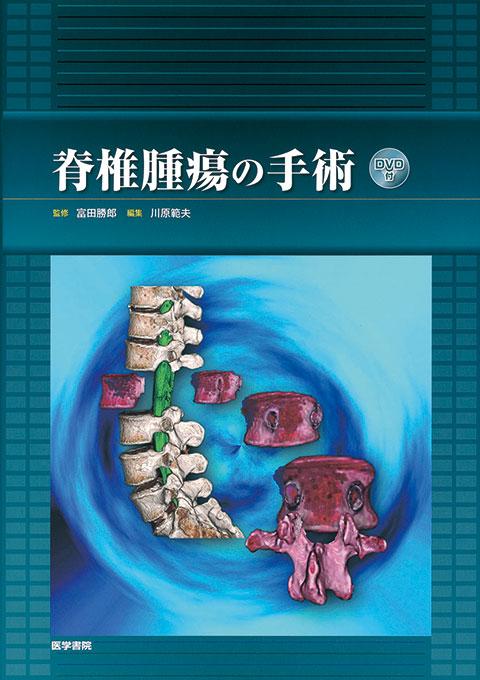 脊椎腫瘍の手術 [DVD付]