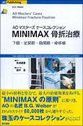 MINIMAX骨折治療