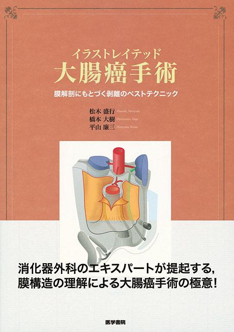 イラストレイテッド大腸癌手術