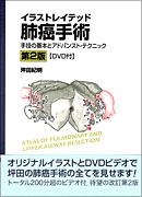 イラストレイテッド肺癌手術 [DVD付] 第2版
