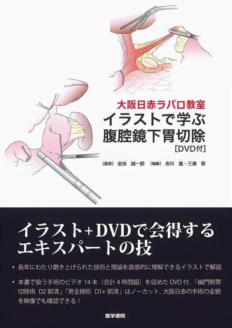 イラストで学ぶ腹腔鏡下胃切除[DVD付]