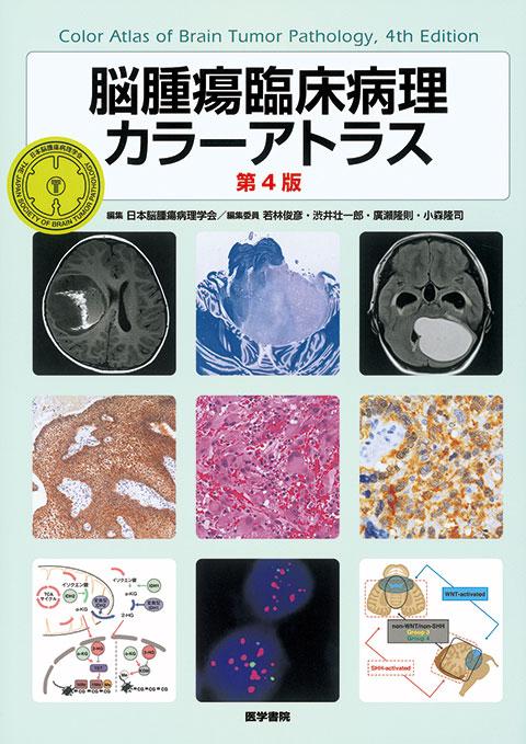 脳腫瘍臨床病理カラーアトラス 第4版