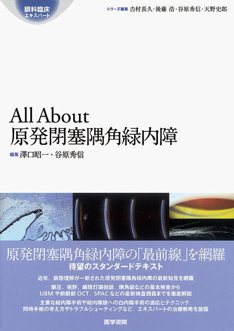 All About 原発閉塞隅角緑内障