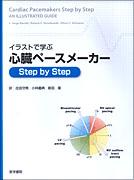 イラストで学ぶ心臓ペースメーカー Step by Step