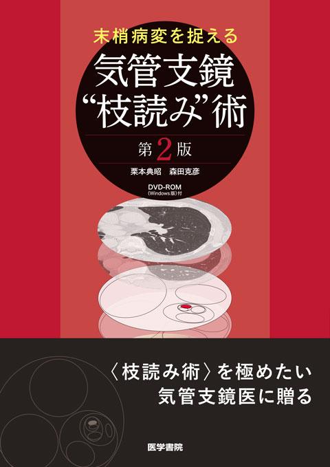 """気管支鏡""""枝読み""""術 [DVD-ROM(Windows版)付] 第2版"""
